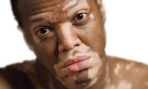 UVB ışınları ile 'Vitiligo'nun tedavisi mümkün