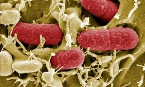 Almanya'da EHEC bakterisi hortladı!