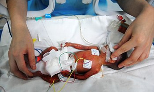 9 günlük bebeğe kritik beyin ameliyatı