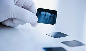 Ortodontide sevk kalktı