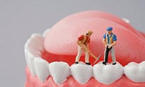 Dis hekimlerinin tercihi köprü yerine implant