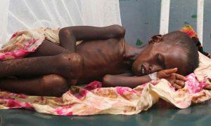 Türk hekimler tatile değil Somali'ye gittiler