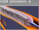 Medtronic, Türkiye'de Endeavor® Resolute İlaç Salınımlı Stentini Piyasaya Sürüyor