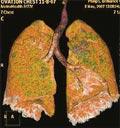 İç organları 3 boyutlu gösteren tomografi cihazı