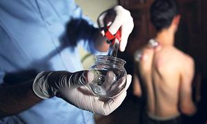 Doktorlara 'kupa terapisi' eğitimi başladı