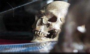 4500 yıllık beyin ameliyatı