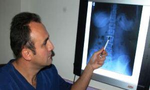10 yıldır X ray cihazının ötmesinin sebebi midesindeki 4,5 santimlik iğneymiş