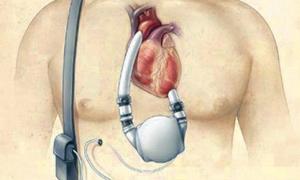 Bu destek cihazı kalpleri fethedecek!