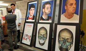 Amerikalı doktorlardan yüz nakli ameliyatı / Video