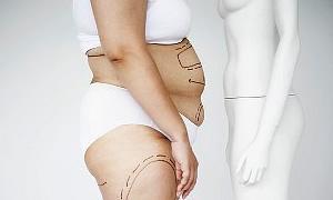 Obezlere neşterle 1 yılda 70 kilo