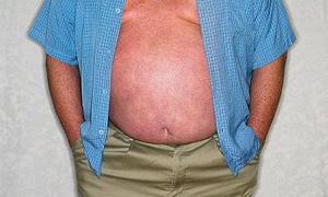 Obezite hastası tedaviye alındı