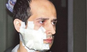 Doktora jiletli saldırı için 5 yıl hapis istendi