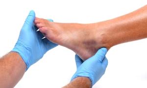 Diyabetik ayaklar için 'podolog' şart!
