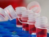Yanık izleri kök hücre tedavisiyle yok ediliyor