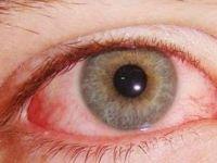 Gözde alerjiye dikkat!