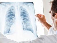 Sigara içen akciğer kanseri hastalarının ilacı ödenmeyecek!