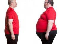 Obezite Cerrahisi ve Mide Küçültme Ameliyatları