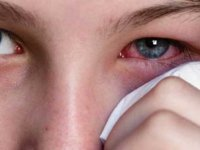 """Dikkat! """"Adenoviral göz enfeksiyonu"""" birçok kişide görülmeye başladı..."""