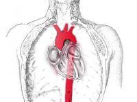 Bu kadar sağlam aort damarı nasıl yırtılır?