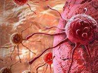 Kanserde kemoterapi mi immünoterapi mi? Ezber bozan araştırma!