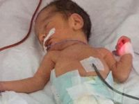Kaan bebek için 2 haftalık anne sütü toplandı