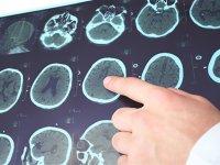 Epilepsi hastaları yeni geliştirilen 'hafıza çipi' ile tedavi edilebilecek