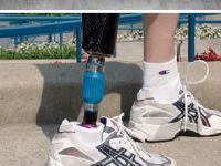 Kelebek hastası Sultan Gür'ün tek isteği protez bacak