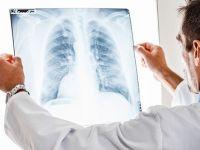 Akciğer kanseri rüzgarda savrulan çadırlar gibi yayılıyor