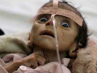 Yemen'de sağlık sistemi çöküyor!