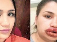 Dudak dolgusu yaptıran hemşire dudaklarını kaybetme tehlikesi yaşıyor