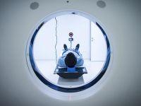 Türk bilim adamından yeni nörolojik hastalık keşfi