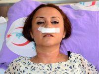 Psikiyatri uzmanına şiddet! Hasta doktorun burnunu kırdı