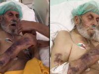 Hastanede skandal görüntü! Yoğun bakım hastasına sigara verdiler