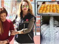 Midesinde 78 kapsül kokain saklayan kadın tutuklandı