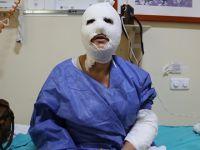 Sabırsızlığı yüzünden patlayan düdüklü hastanelik etti