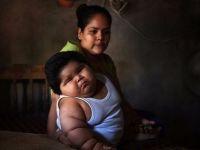 Dünyanın en şişman bebeğine doktorlar teşhis koyamıyor