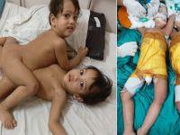 Başlarından yapışık doğan ikizler 16 saat süren ameliyatla ayrıldı