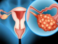 Yumurtalık kanserinde düzenli kontrol hayat kurtarıyor