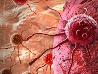 Kanseri başlangıcında tespit edebilecek deri implantı geliştirildi