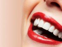 Diş Beyazlatma Hakkında Sık Sorulan Sorular