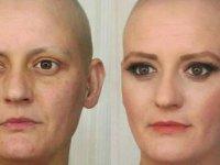 Meme kanseri için komu spotunda oynadı, 9 ay sonra meme kanseri oldu