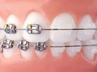 Manisa Ortodonti, İmplant ve Diş Estetiği Kliniği