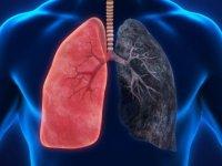 Bu belirtiler varsa akciğer kanserine dikkat!