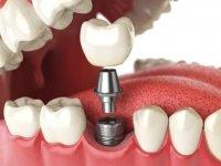 Implant ve Diş Yapısı Hakkında