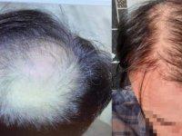 Saç ekiminden memnun kalmayan mühendis dava açtı