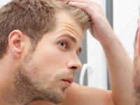 Saç ekimi yaptırmak için en doğru yaş kaçtır?
