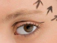 Pitozis (Göz Kapağı Düşüklüğü)