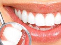 Diş beyazlatma işlemi dişlere zarar veriyor mu?