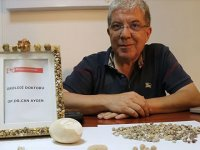 Hastaların kurtulduğu 'taşlar' doktorun koleksiyon oldu