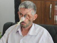 Hatay Valiliğinden 'Diş çektirdi, gözünü kaybetti' haberlerine açıklama: Gerçeği yansıtmıyor